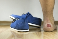 Possible Causes for Blisters on the Feet